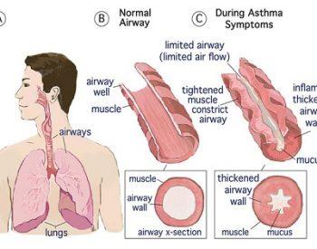 Кистозна фиброза